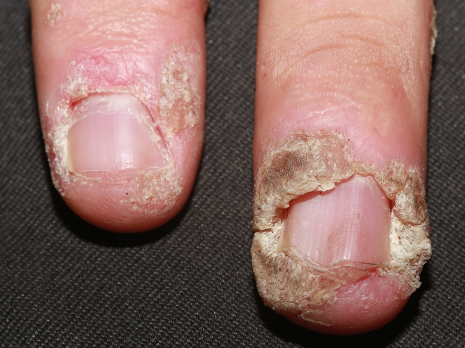 how to get rid of nail fungus under acrylic nails photo - 2