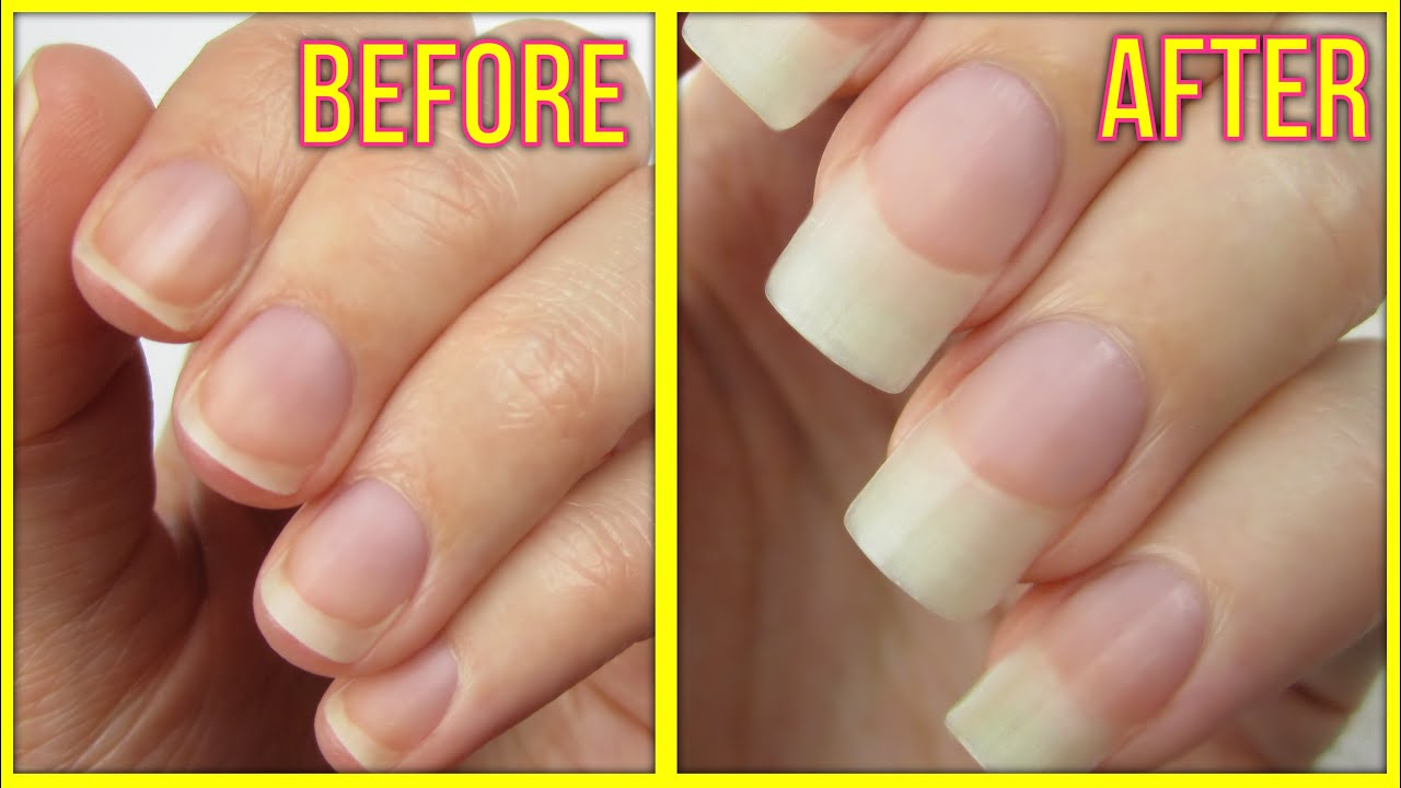 how to grow out nails after peeling off gel photo - 1