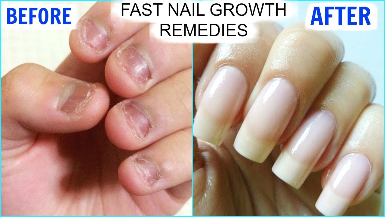 how to make your nails stronger after gel nails photo - 2