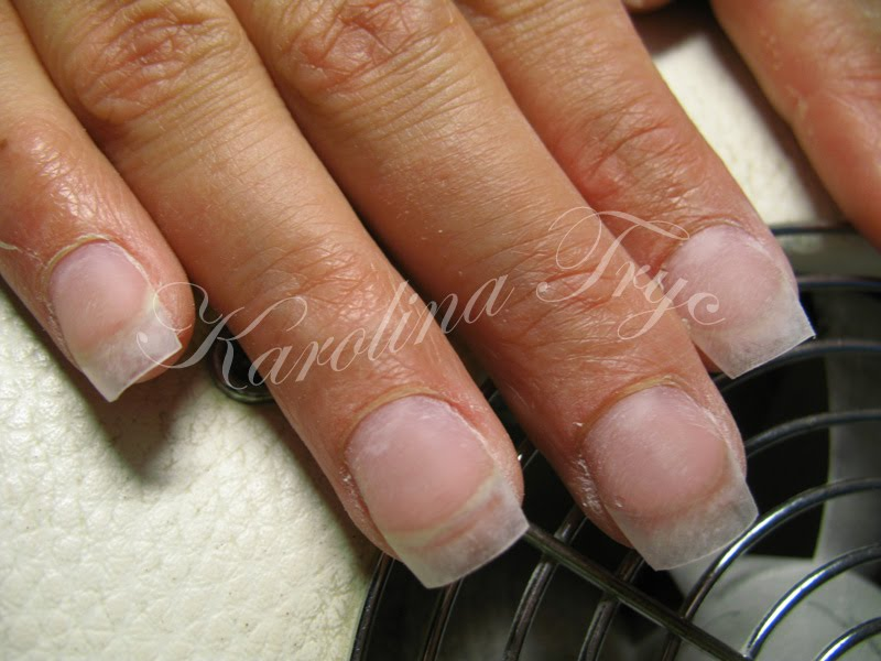 how to stop gel nails keep lifting with thin damaged nails photo - 1