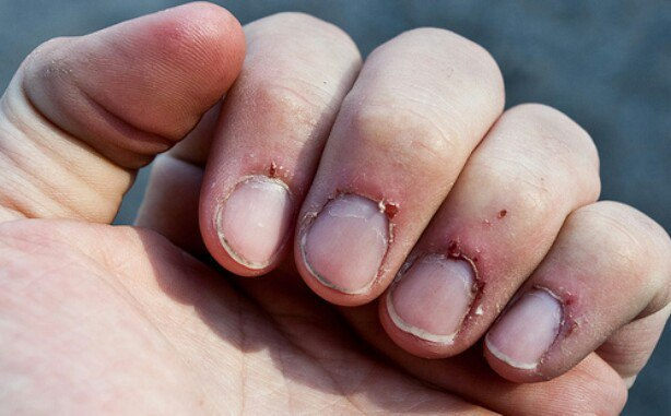 my cuticle are so bad acrylic nails reddit photo - 1