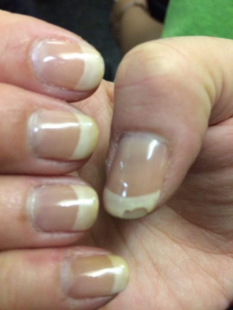 my white gel nails are turning brown photo - 2