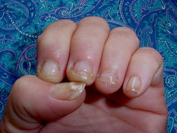 nail fungus from acrylic nails photo - 1