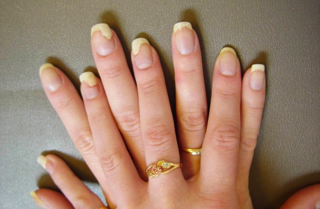 nail issues from acrylic nails photo - 1