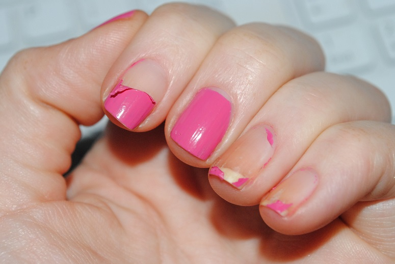 Peeling off gel nails - Expression Nails