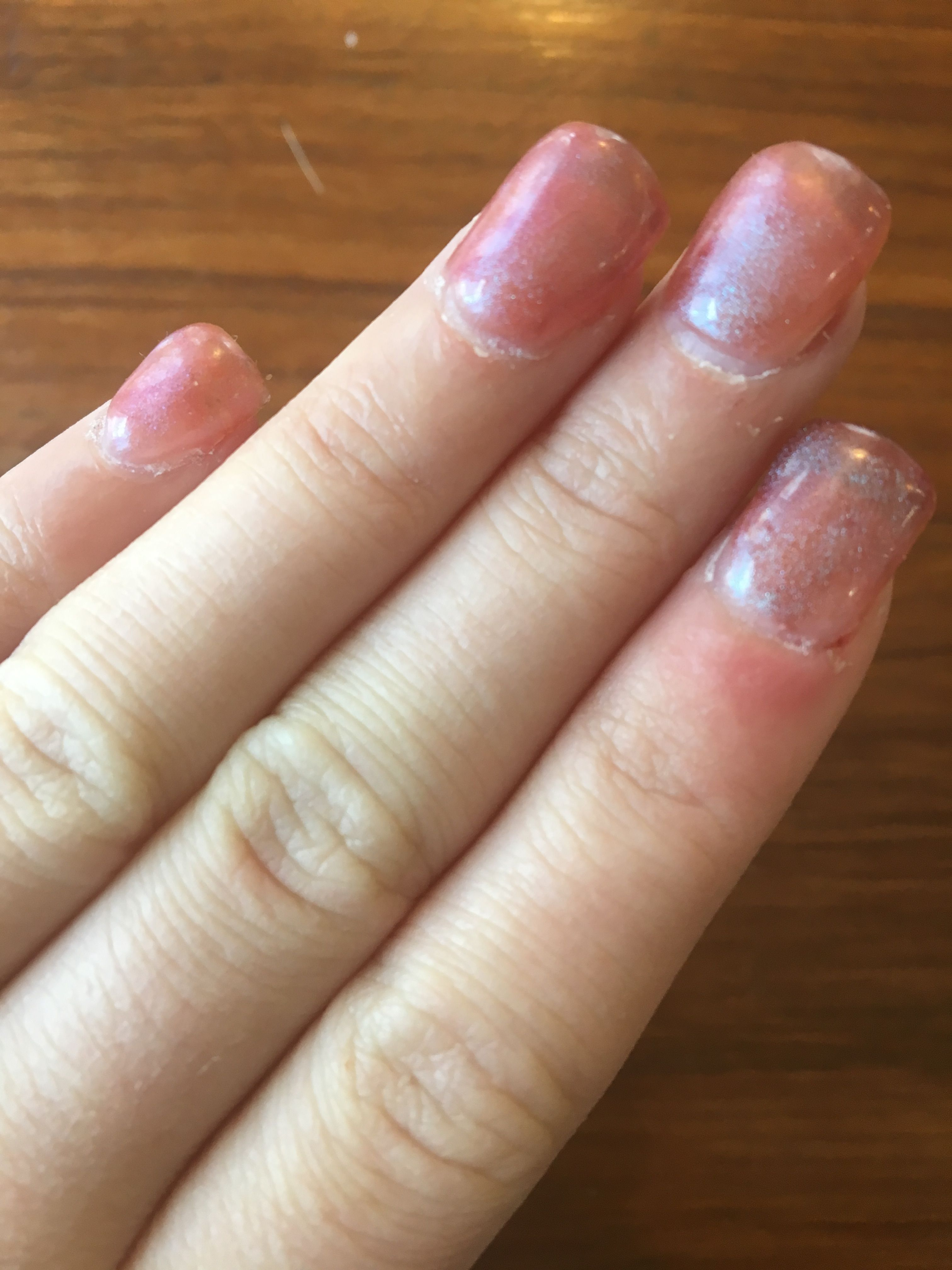 Everything you should know before you try a set of acrylic