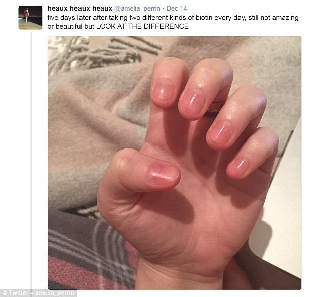 skin peeling after acrylic nails photo - 2