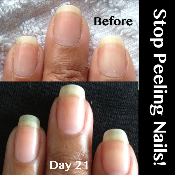 what to do after you peel gel nails photo - 1