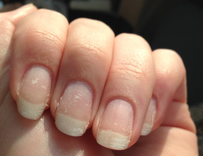 what to do after you peel gel nails photo - 2