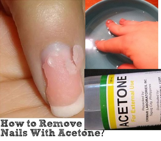 what to put under gel nails to remove easily photo - 1
