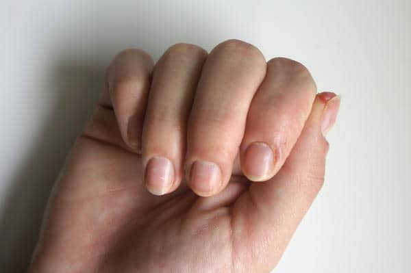 when gel nails hurt photo - 2