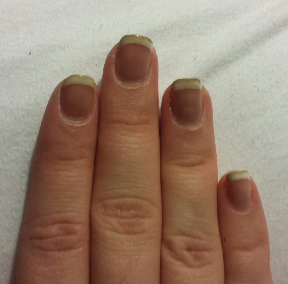 when gel nails turning black photo - 1