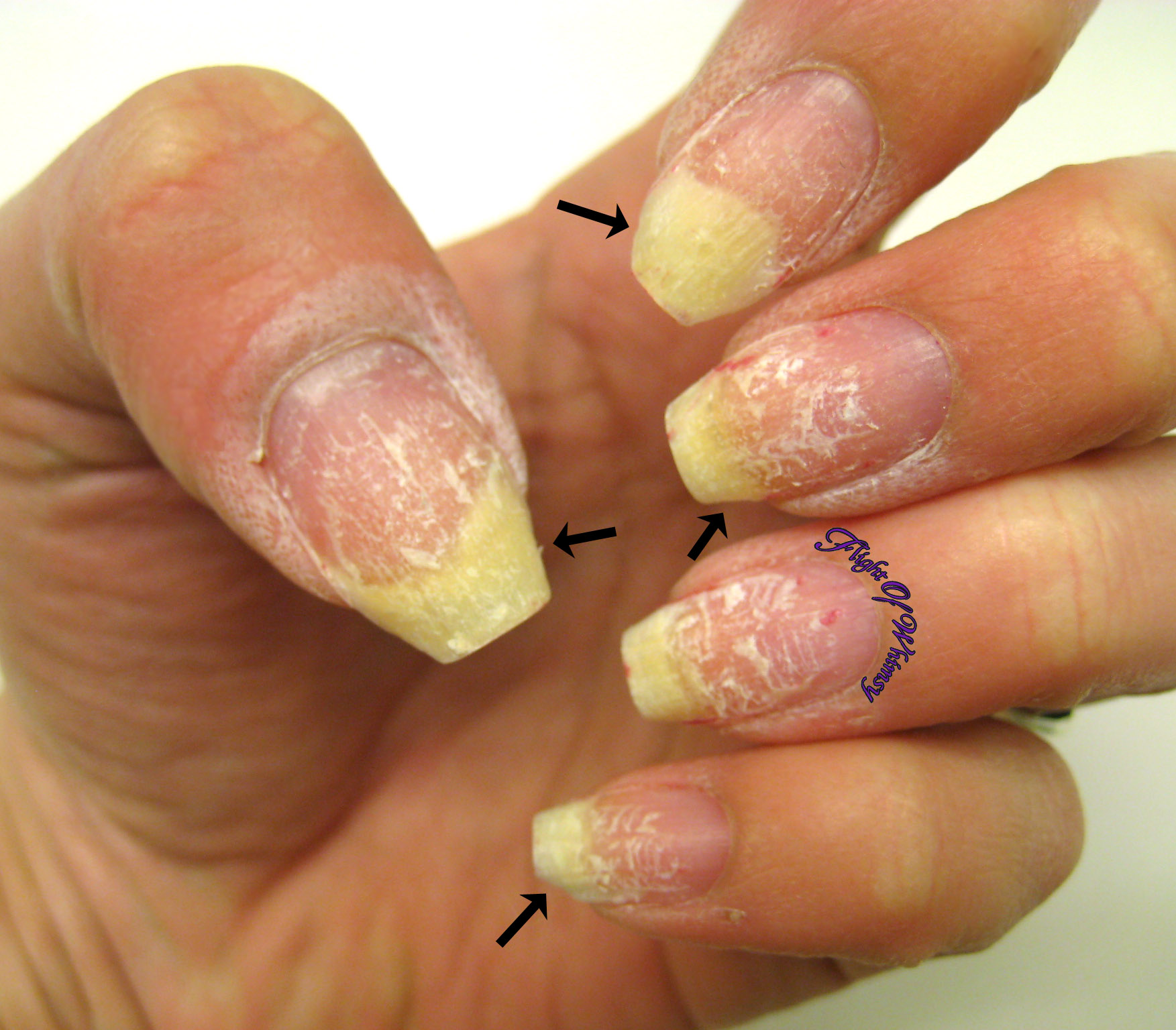 why are my gel nails peeling photo - 2