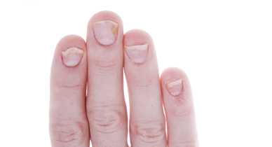 why are my hard gel nails coming off photo - 1