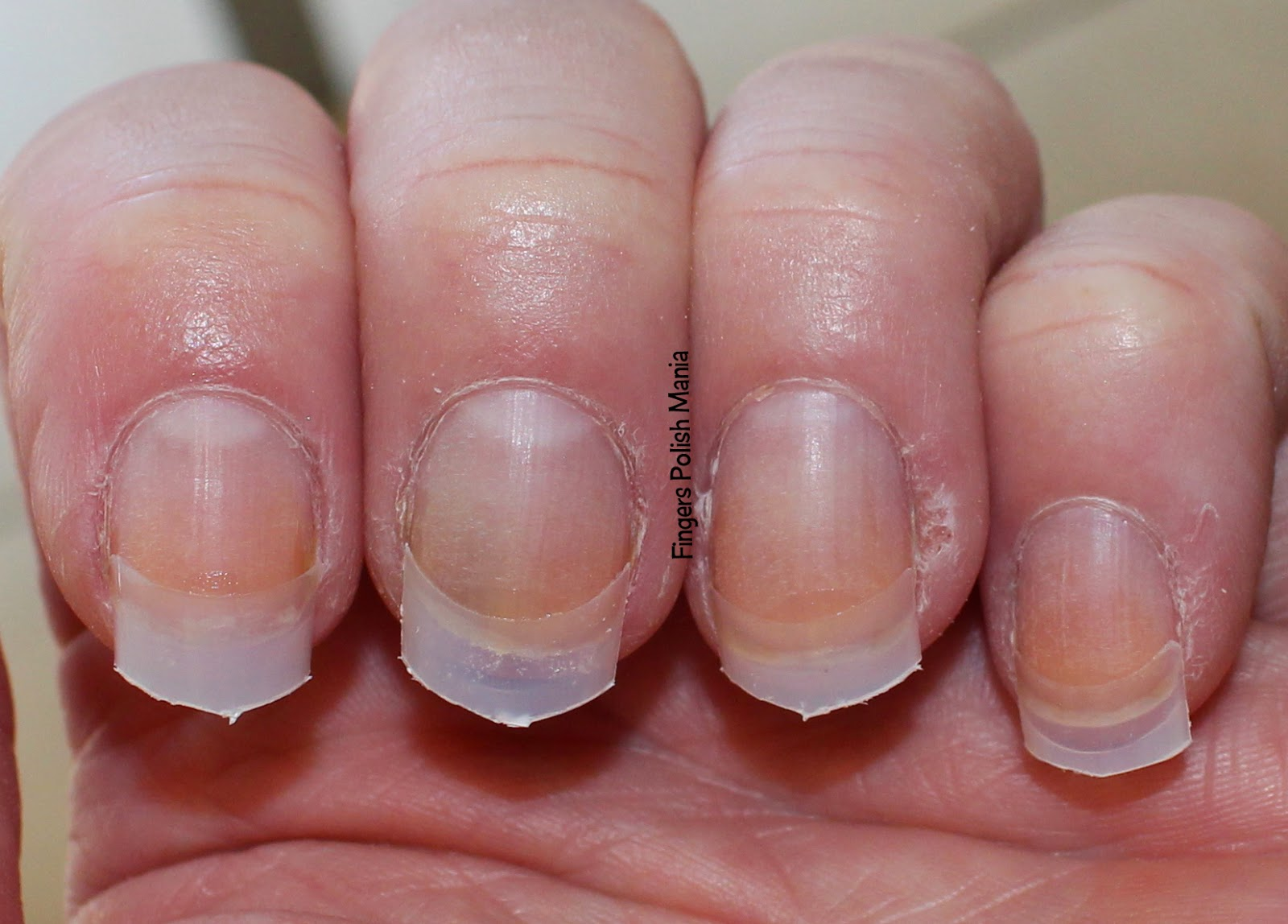 why are my nails so thin from getting gel dipped nails photo - 2