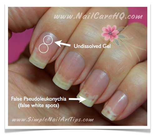 why finger nails hurt after removing gel photo - 1